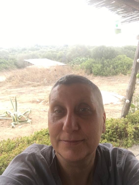 10 agosto 2016 – Stazzo Zirrulia, Veranda. Io e il mio agave. Ancora bloccata, l'arnica e le medicine fanno un baffo alla mia lombosciatalgia.